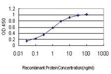 Anti-ZWINT Mouse Monoclonal Antibody [clone: 6D3]