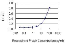Anti-OLFM1 Mouse Monoclonal Antibody [clone: 2G12-1B3]