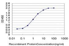 Anti-PWP1 Mouse Monoclonal Antibody [clone: 3A11]