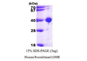 Human Recombinant LDHB, BioVision