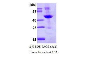 Human Recombinant ADA, BioVision