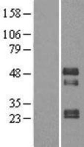 TOB2 Lysate (Adult Normal), Novus Biologicals (NBP2-04353)