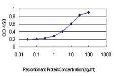 Anti-CORO1A Mouse Monoclonal Antibody [clone: 4G10]