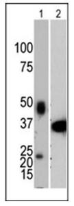 Western blot analysis of anti-PTP1B antibody (Cat.#3122- 100) in in mouse lung tissue extract (Lane 1) and recombinant PTP1B protein [1-321] (Lane 2).