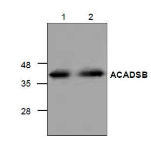 Western blot analysis of ACADSB with<br />Jurkat cell lysate (Lane 1 & 2).