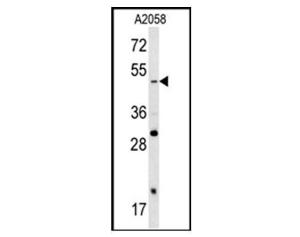 Western blot analysis of SOX4 antibody (Cat.<br />#3168-100) in A2058 cell line lysates<br />(35ug/lane). SOX4 (arrow) was detected using<br />the purified pAb.