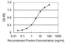 Anti-LDB3 Mouse Monoclonal Antibody [clone: 2C1]