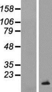 TCL1B Lysate (Adult Normal), Novus Biologicals (NBP2-04653)
