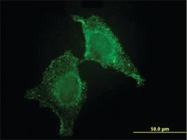 Anti-CIB1 Mouse Monoclonal Antibody [clone: 4D2-3A8]