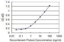 Anti-SUPT16H Mouse Monoclonal Antibody [clone: 3G9]