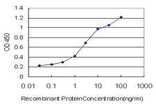Anti-ANXA10 Mouse Monoclonal Antibody [clone: 4G12]