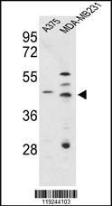 Anti-CTSD Rabbit Polyclonal Antibody