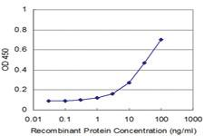 Anti-AGR2 Mouse Monoclonal Antibody [clone: 1C9]