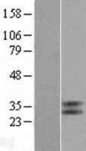 TGR5 Overexpression Lysate (Adult Normal), Novus Biologicals (NBL1-11217)