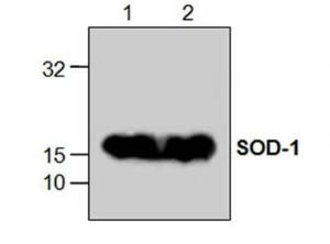 Western blot analysis ofSOD expression with Jurkatcell lysates (Lane 1, 2).