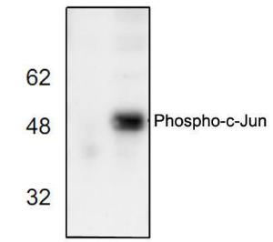 Western blot analysis of phospho-c-Junin NIH3T3 cells with (right lane) orwithout (left lane) Anisomycin treatment.