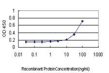 Anti-CHEK2 Mouse Monoclonal Antibody [clone: 4B7]