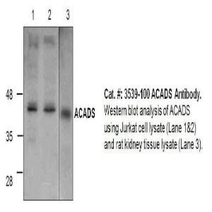 ACADS Polyclonal Antibody