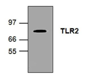 Western blot analysis of TLR2in Ramos cell lysate.