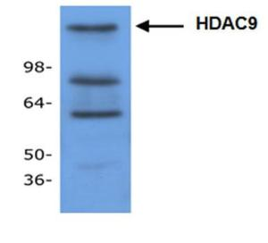Cat.# 3609-100Western blot analysis of HDAC-9 in mouse small intestine tissue lysate.