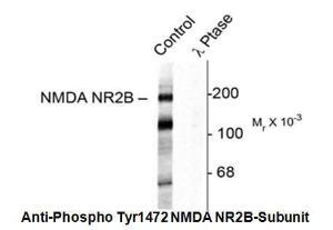 Anti-Phospho (Tyr1472) NMDA NR2B Rabbit Polyclonal Antibody