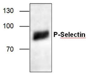 Western blot analysis ofP- Selectin expression inJurkat cell lysate.