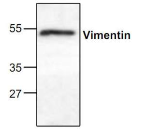 Western blot analysis ofVimentin expression inmouse small intestinetissue lysate