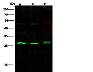 Anti-UCHL3 Rabbit Monoclonal Antibody
