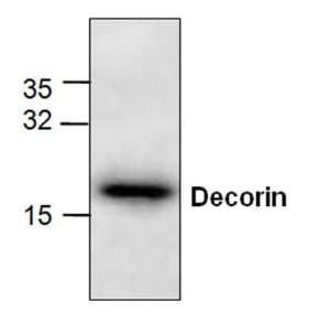 Western blot analysis of Decorin in Jurkat cell lysate.