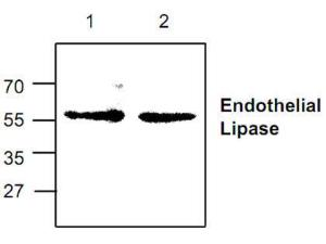 Western blots analysisof Endothelial Lipasewith Jurkat cell lysate.
