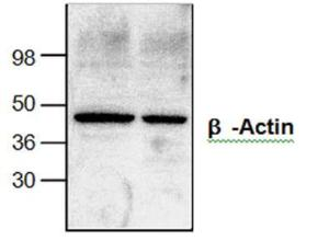 Western blot analysis ofβ -Actin in Jurkat cell lysate(left lane) and mouse intestinetissue lysate (right lane).