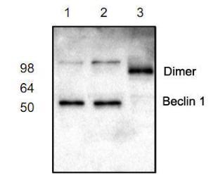 Western blot analysis ofBeclin 1 expression in Jurkat(Lane 1,2) and mouseintestine (lane 3) lysates.