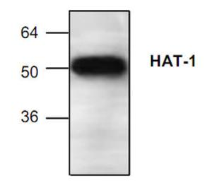 Western blot analysis ofHAT-1expression inJurkat cell lysate.