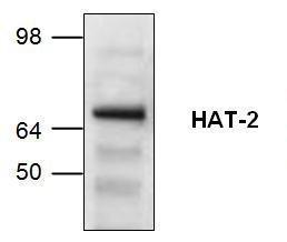Western blot analysisof HAT-2 expression inJurkat cell lysate.