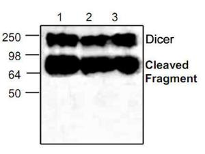 Western blot analysis ofDicer expression in Jurkatcell lysate (Lane 1 & 2) andmouse small intestine tissuelysate (Lane 3).