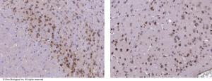 Anti-Neuroserpin Rabbit Monoclonal Antibody