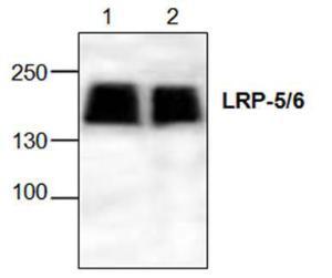 Western blot analysisof LRP-5/6 with Jurkatcell lysate (Lane 1: 100μg; Lane 2: 50 μg).