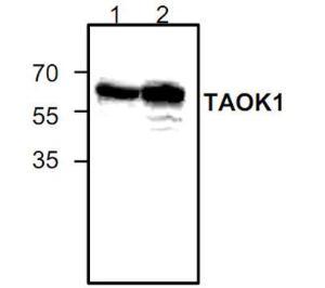 Western blot analysis ofTAOK1in Jurkat cell lysate(Lane 1& 2).