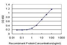 Anti-IRAK3 Mouse Monoclonal Antibody [clone: 1A6]