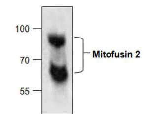 Western blot analysis ofMitofusin 2 in Jurkat celllysate.
