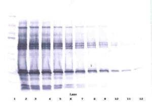 To detect hIGF-BP1 by Western Blot analysis this antibody can be used at a concentration of 0.1 - 0.2 ug/ml. Used in conjunction with compatible secondary reagents the detection limit for recombinant hIGF-BP1 is 1.5 - 3.0 ng/lane, under either reducing or non-reducing conditions.