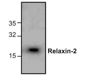 Western blot analysis ofRelaxin-2 expression inJurkat cell lysate.