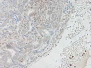 IHC-P of human ovary malignant adeoncarcinoma. The recommended concentration is 7.5ng/mL -15ng/mL with an overnight incubation at 4˚C. Tissue samples were provided by the Cooperative Human Tissue Network, which is funded by the National Cancer Institute.