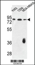 Anti-F12 Rabbit Polyclonal Antibody