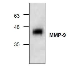 Western blotanalysis using recombinanthuman MMP-9.