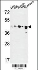 Anti-ADH7 Rabbit Polyclonal Antibody