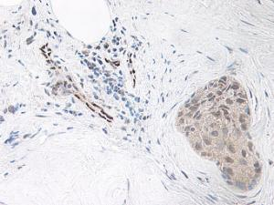This antibody stained formalin-fixed, paraffin-embedded sections of human breast malignant ductal adenocarcinoma. The recommended concentration is 0.125 ug/ml-0.25 ug/ml with an overnight incubation at 4˚C.