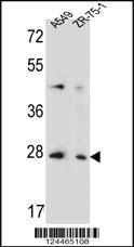 Anti-TM4SF4 Rabbit Polyclonal Antibody