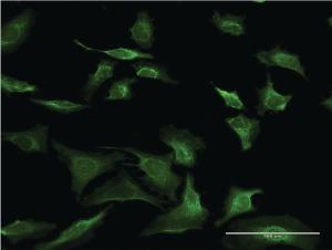 Anti-SEC63 Mouse Monoclonal Antibody [clone: 1A8]