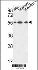 Anti-ATP5A1 Rabbit Polyclonal Antibody
